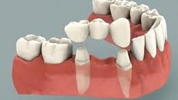 Zubní můstek - kdy je potřeba?