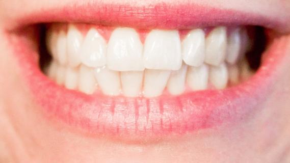 Jak si vybělit zuby doma?