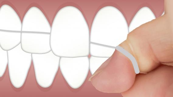 Jaké jsou dentální pomůcky a proč je používat?