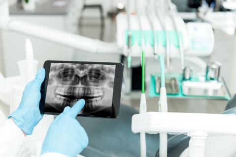 CBCT – 3D přesná diagnostika