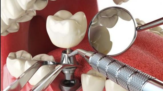Zubní implantáty Straumann a Oktagon
