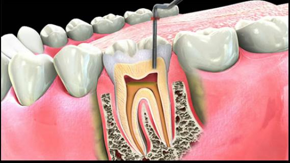 Endodoncie pod mikroskopem