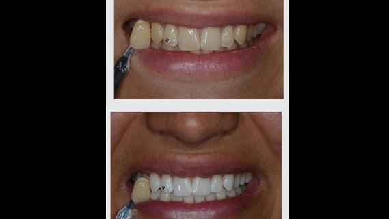 Kombinované bělení zubů Phure Whitening
