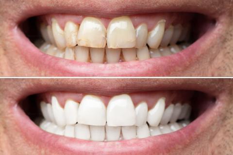 Bělení zubů metodou Pure Whitening
