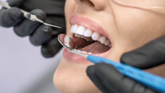 Jak se správně starat Vaše zuby