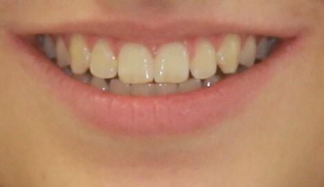 Žádost na ortodoncii do kliniky Ortovia